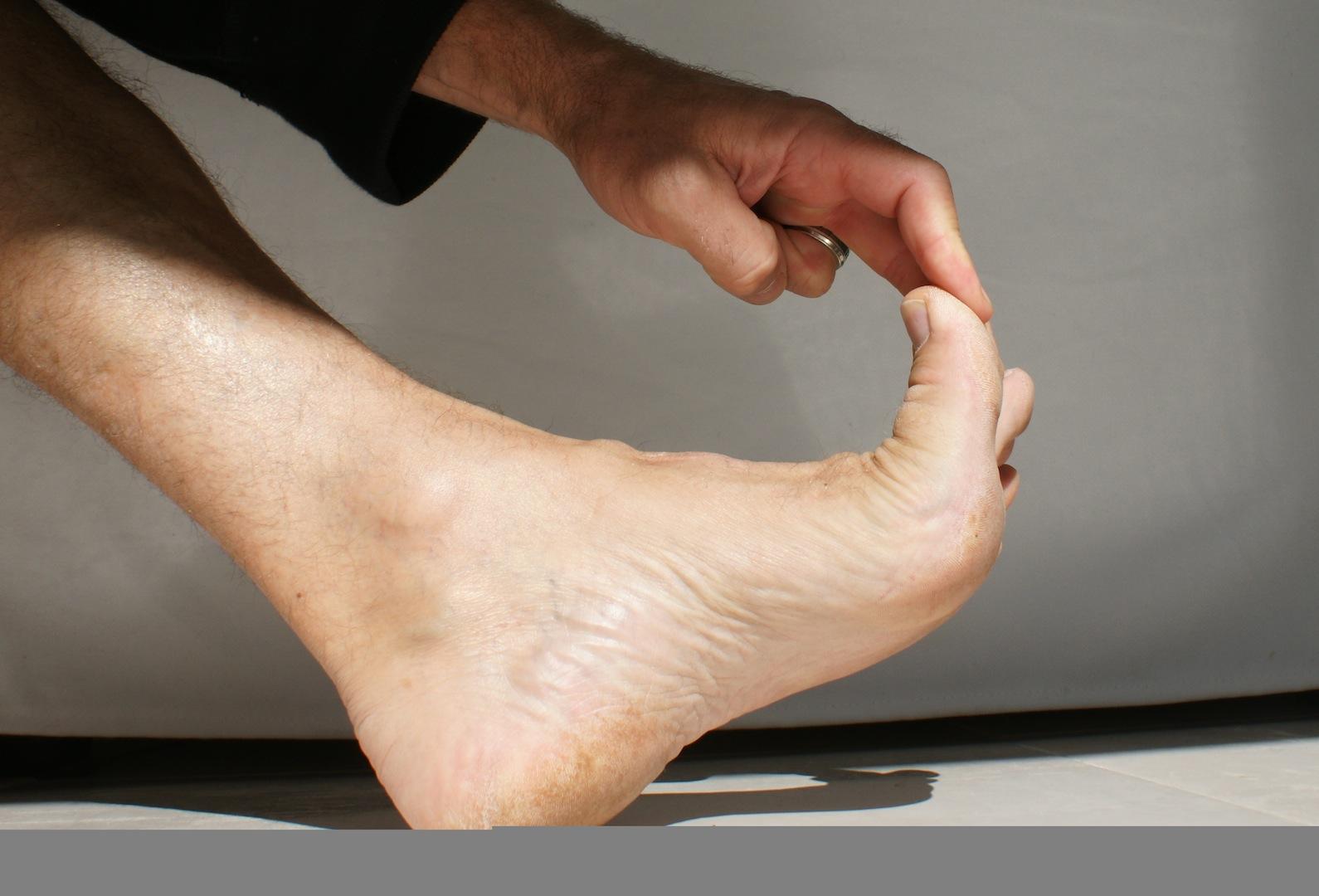 Comment soigner un durillon sous le pied - Bain de pied au gros sel et vinaigre ...