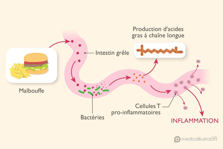 Sclérose en plaques : la maladie du système nerveux